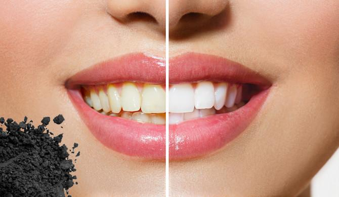 whitening kits vs in-office whitening